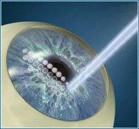 ФемтоЛАСИК — лазерная коррекция зрения