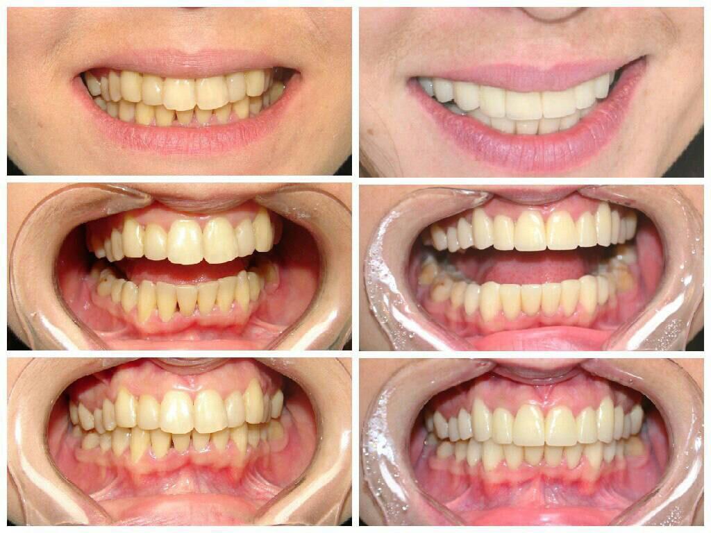 Стоматология Олимп-С - Реставрация в зоне улыбки