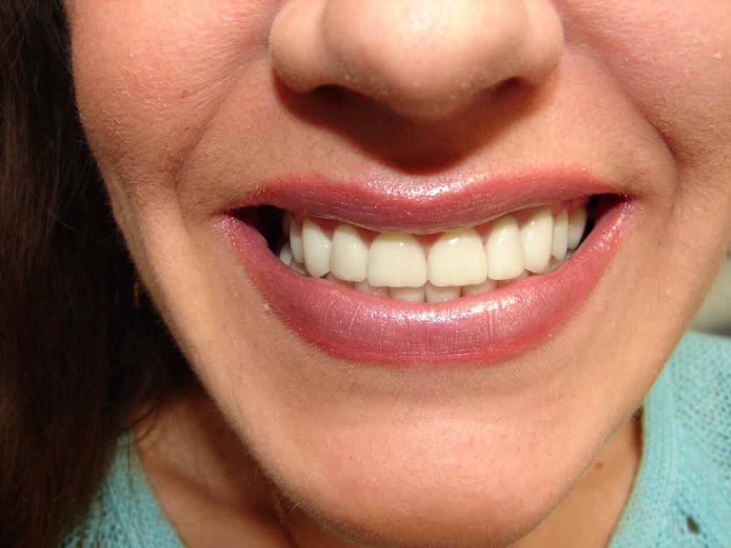 Стоматология Олимп-С - Естественная красота
