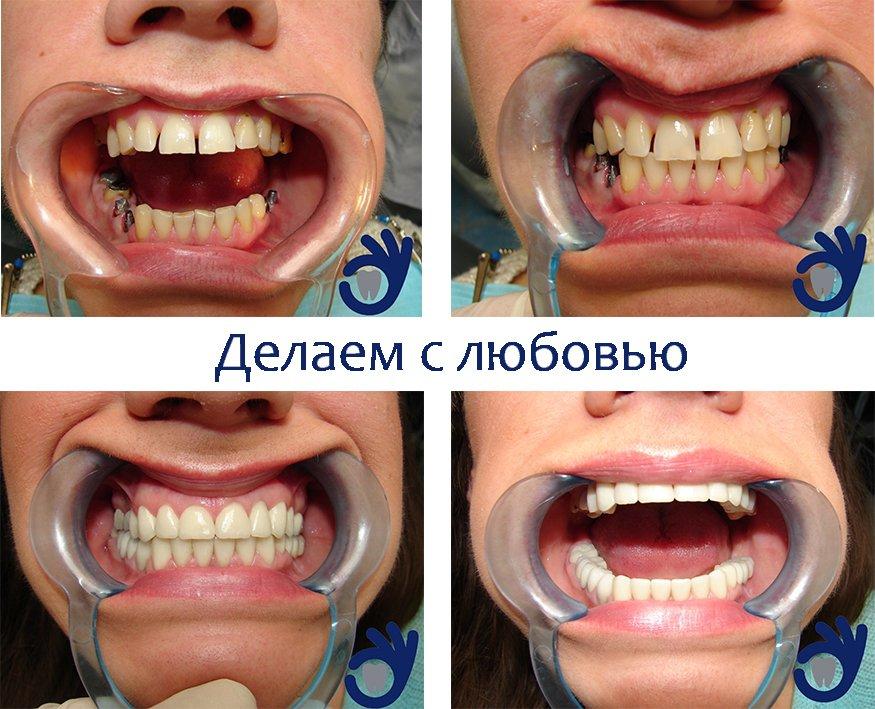 Клиника полноценной стоматологии GOODENTAL - Наша работа