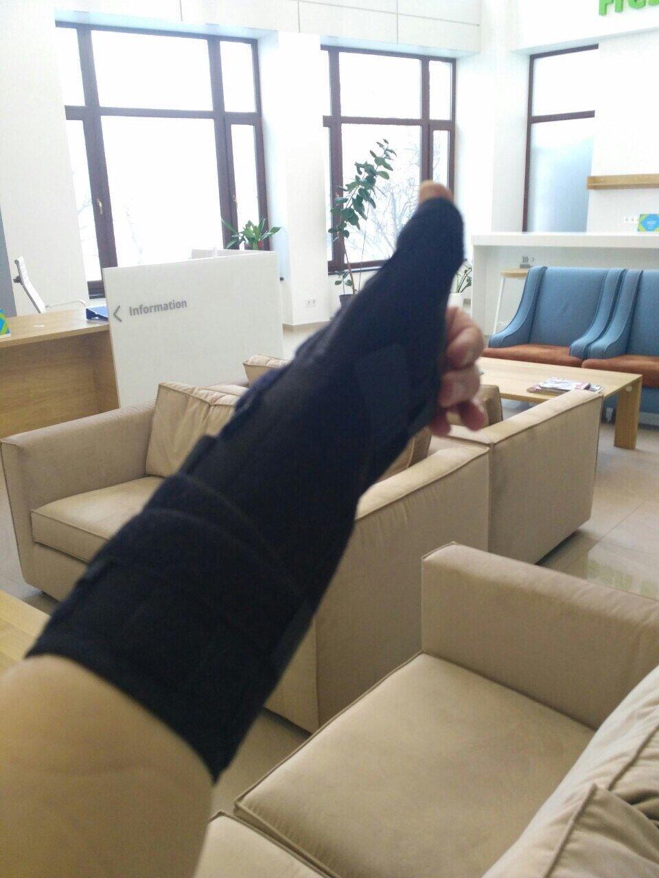 Травма пальца - быстро, профессионально и безболезненно ! - Классное современное отделение и аккуратные врачи профессионалы !