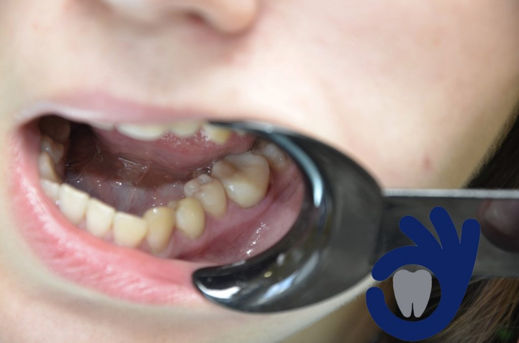 Клиника полноценной стоматологии GOODENTAL - Отличная реставрация