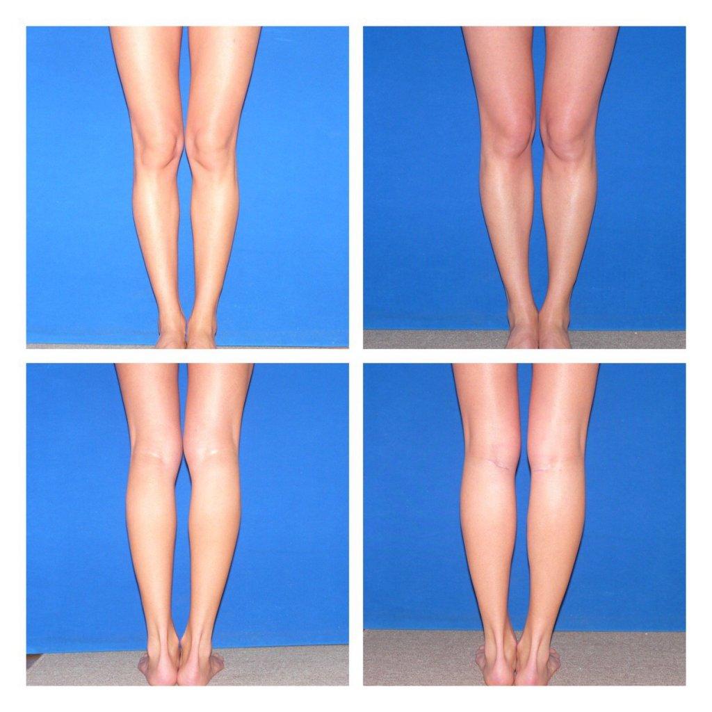 Клиника пластической хирургии Хаустова С.А. - Эндопротезирование голени (устранение кривизны ног)