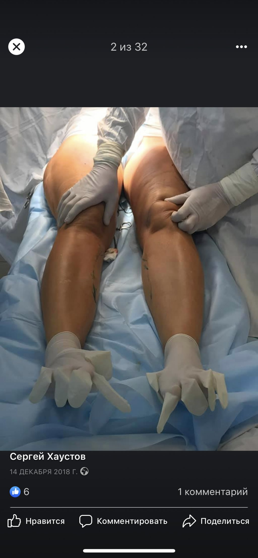 Клиника пластической хирургии Хаустова С.А. - Правдивые отзывы удаляются